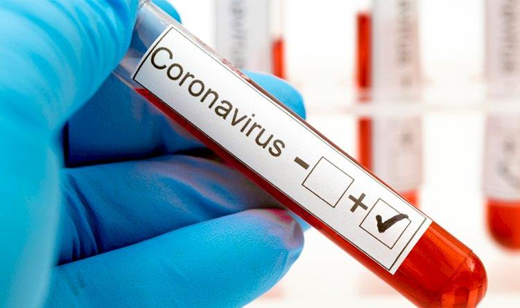 Exames de covid-19 estão disponíveis no site da Secretaria Municipa de Sáude.