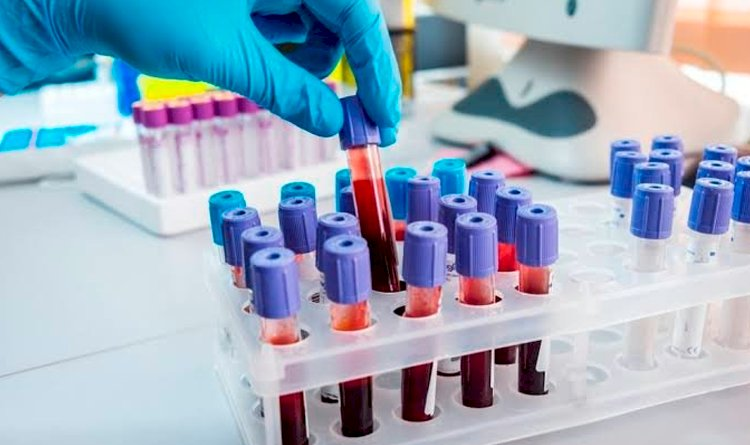 Precisando de exames de laboratórios pelo SUS? Se liga nessa ação!